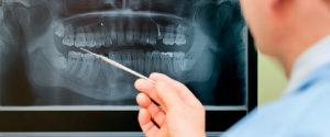 In unserer Zahnarzt-Praxis in Mutlangen bieten wir neuste Behandlungsmethoden rund um Ihre Zähne