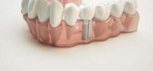 In unserer Zahnarzt Praxis in Mutlangen setzen wir modernste Implantate ein
