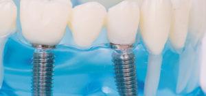 Implantate von der Zahnarztpraxis Kümmel in Mutlangen bei Schwäbisch Gmünd