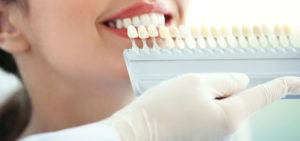 Zahnästhetik in der Zahnarztpraxis Kümmel in Mutlangen bei Schwäbisch Gmünd